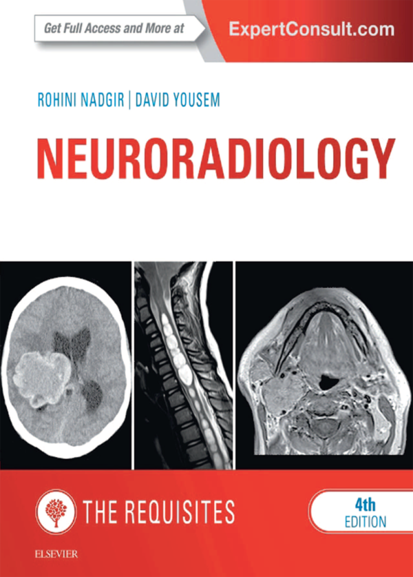 Neuroradiology the Requisites