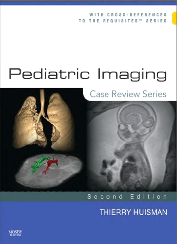 Pediatric Imaging CRS Case Review Series